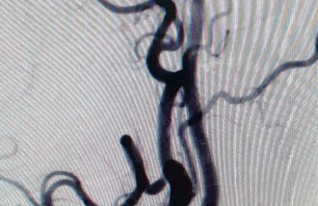 Carotid and ICA Stenosis