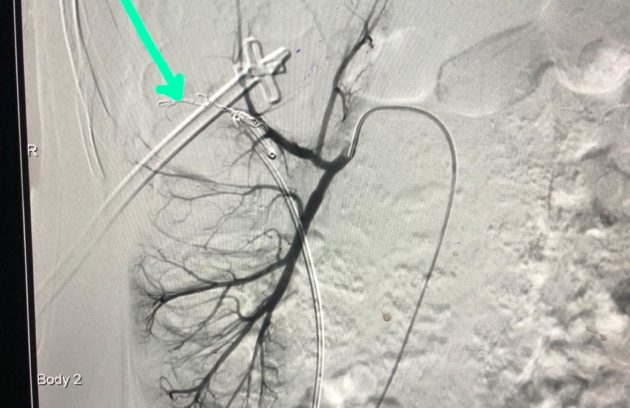 Post Coiling - Completely Saved Rt. Kidney