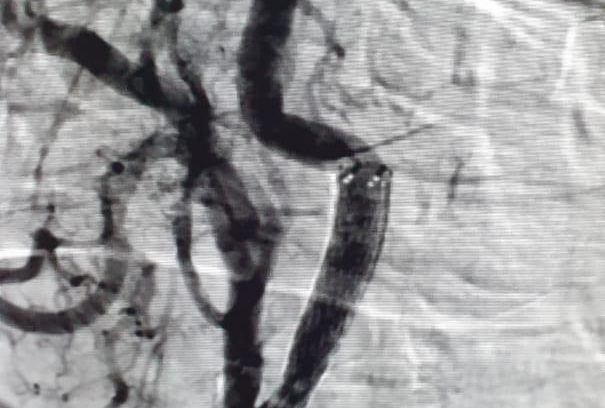 Carotid Angioplasty / Stenting