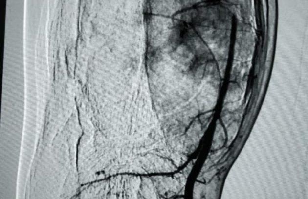 Pre Embolization Distal Tibial ABC
