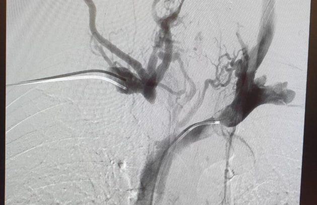 Rt. Innominate Vein Occlusion pre venoplasty in CKD patient